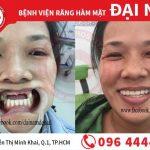 Thực hiện cấy ghép răng implant có đau hay không?
