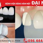 Răng sứ Veneer Diamond đỉnh cao của vẻ đẹp