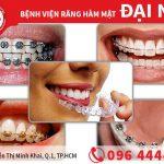 Có nên niềng răng bằng răng tháo lắp không?