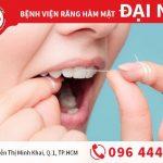 Dùng chỉ nha khoa trước hay sau khi đánh răng