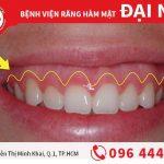 Cắt bỏ nướu răng an toàn tại nha khoa Đinh Tiên Hoàng