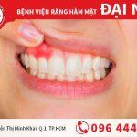 Tìm hiểu apxe răng và cách chữa trị hiệu quả