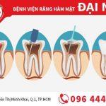 Chữa tuỷ răng tốt nhất tại TPHCM