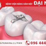 Bạn cần biết trước khi trám răng