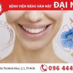 Tại sao phải dùng hàm duy trì sau khi thực hiện niềng răng?