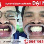 Giải pháp all on 6 cho người mất răng hàm trên