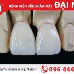 Răng sứ Emax - đỉnh cao răng toàn sứ