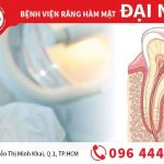 Bọc răng sứ có phải lấy tủy không?