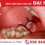 Nhổ răng khôn tại trung tâm nha khoa Đinh Tiên Hoàng