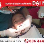 Răng sữa bé chưa rụng mà răng vĩnh viễn đã mọc
