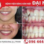 Những điều cần biết về răng khểnh