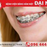 Thực hiện niềng răng thất bại có nguy hiểm không?