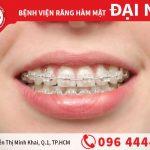 Ưu khuyết điểm của niềng răng mắc cài sứ