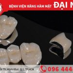 Răng sứ kim loại chất lượng cao