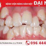 Tại sao răng mọc lệch lại phát âm sai?