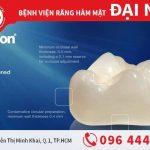 Bọc răng sứ Cercon – sự lựa chọn tốt nhất
