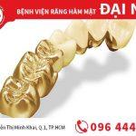 Trồng răng sứ quý kim tại TPHCM