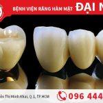 Răng sứ Titan - răng sứ kim loại chất lượng