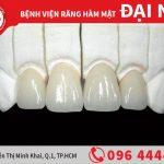 Làm răng sứ vita chất lượng