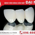 Bọc răng sứ zirconia - sự lựa chọn hoàn hảo