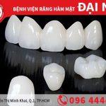 Các loại răng sứ dùng trong Nha khoa Đinh Tiên Hoàng