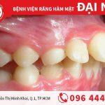 Những điều cần biết về nẹp răng vẩu
