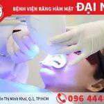 Tẩy trắng răng bằng công nghệ hiện đại - Laser Whitening