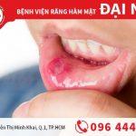 Bệnh nhiệt miệng - nguyên nhân và cách điều trị hiệu quả