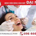 Thông tin quan trọng về răng số 6 bạn cần biết