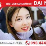 Bí quyết làm răng thỏ đẹp chuẩn Hàn Quốc