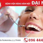 Bật mí thông tin quan trọng về răng số 4