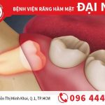 Răng mọc ngầm - nguyên nhân và cách chữa trị